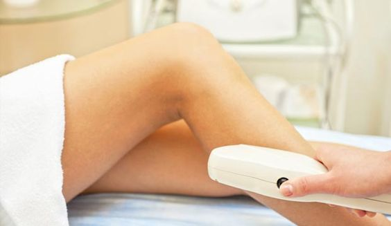 epilation-laser-definitive-methodes
